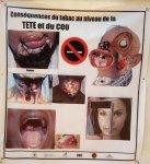 Burkina Faso : Le tabac tue plus de 48 000 personnes par an